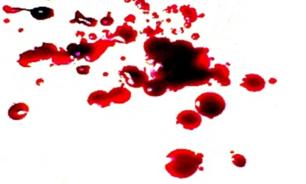 جنایت در رقابت عشقی ۲ برادر نابینا در سرخس
